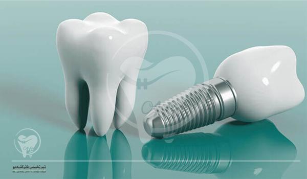 نکات مهم پس از عمل جراحی کاشت ایمپلنت دندان