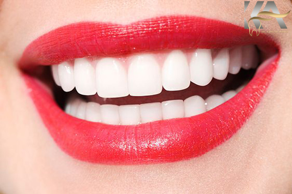 انواع روش ها در دندانپزشکی زیبایی