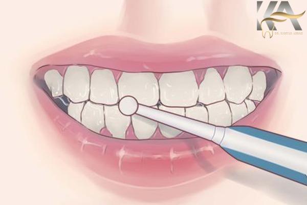 بلیچینگ آفیس و خانگی دندان
