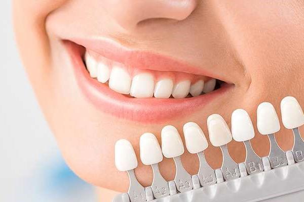چگونه بهترین دندانپزشک زیبایی در تهران انتخاب کنیم؟